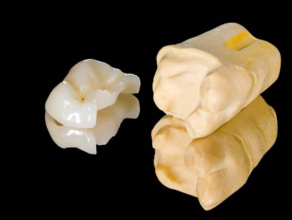 Q And A Dental Inlays Vs Onlays Reno Nv