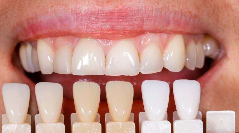 Dental Veneer Placement Reno Nv