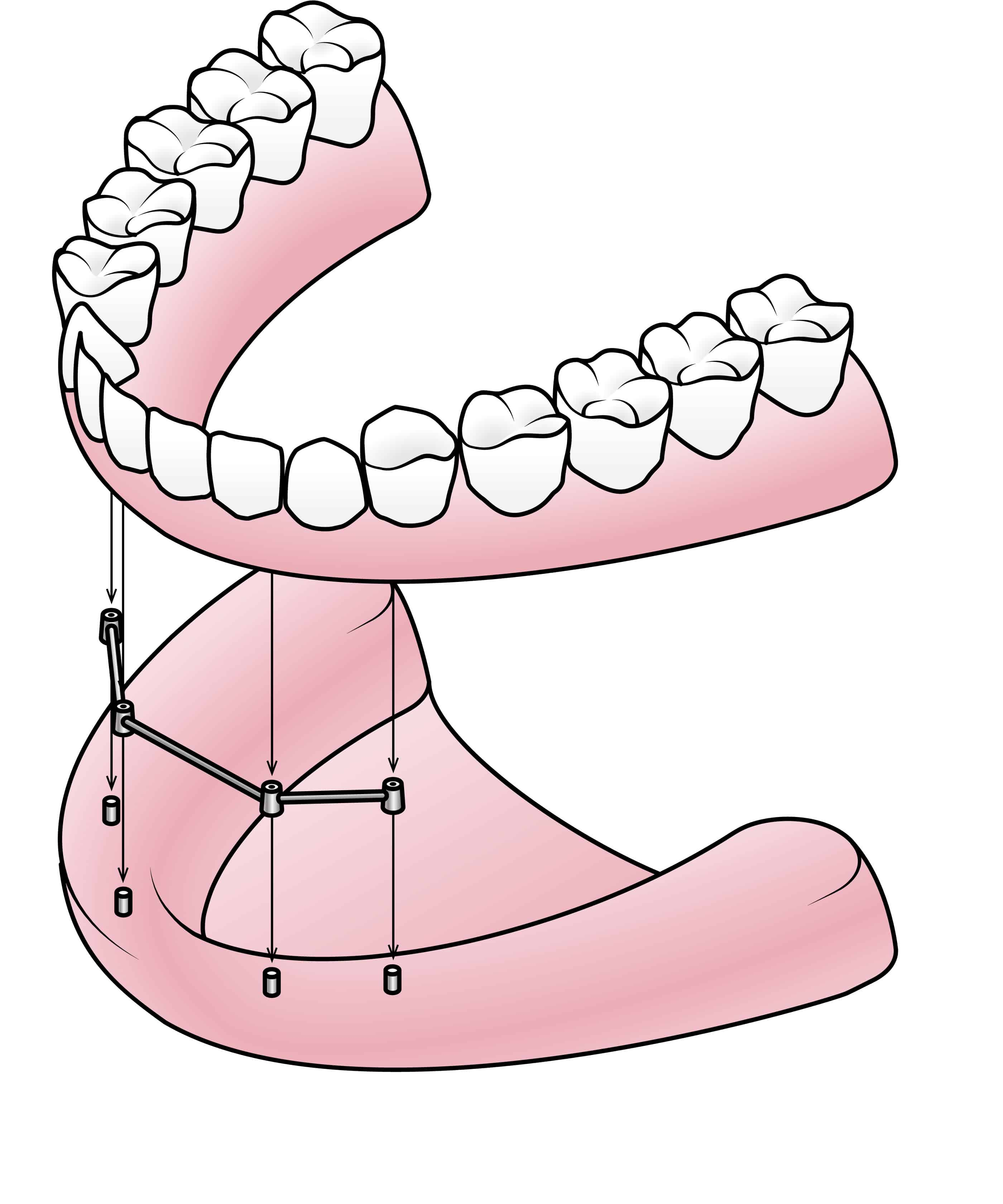 Three Different Types Of Dentures   Wager Evans Dental